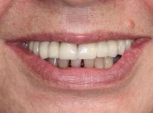 <h4 style='font-size: 16px'>After #1</h3><p style='font-size: 16px'>Fixed bridge replacing all missing upper teeth with implants.</p>