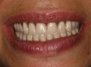 <h4 style='font-size: 16px'>After #3</h3><p style='font-size: 16px'>Replacing missing upper and lower teeth with implant implant bar retained dentures.</p>
