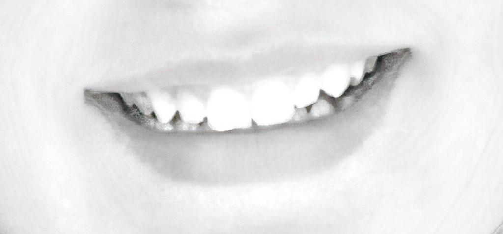 Gingivitis Post Smile